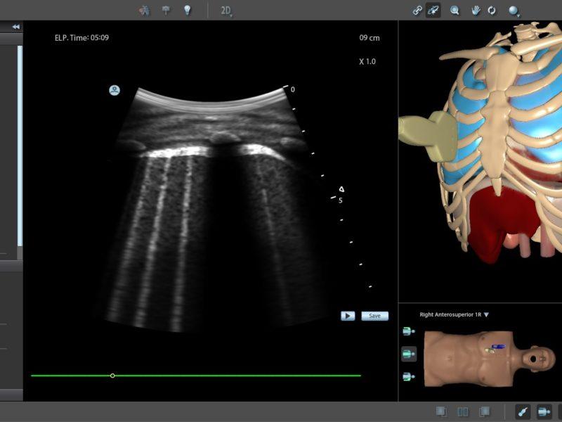 Simulateur d'échographie pulmonaire et COVID-19 – Twin Medical