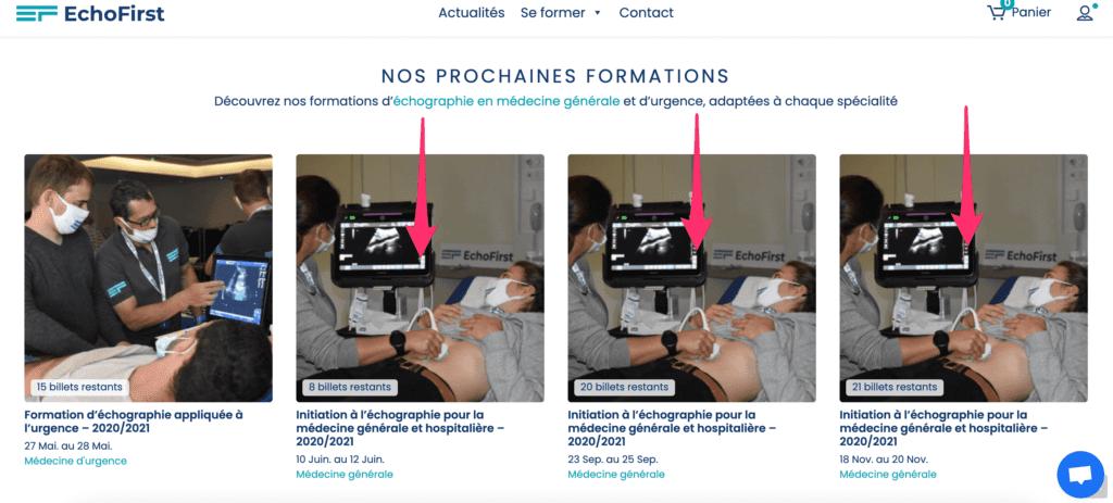 Formation échographie médecine générale